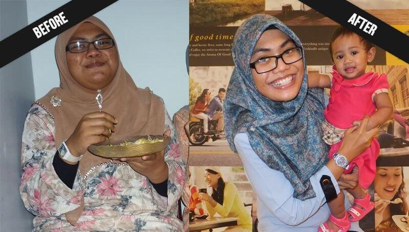Nur Farihan sebelum (kiri) dan selepas (kanan) berjaya menurunkan berat badan sebanyak 42kg
